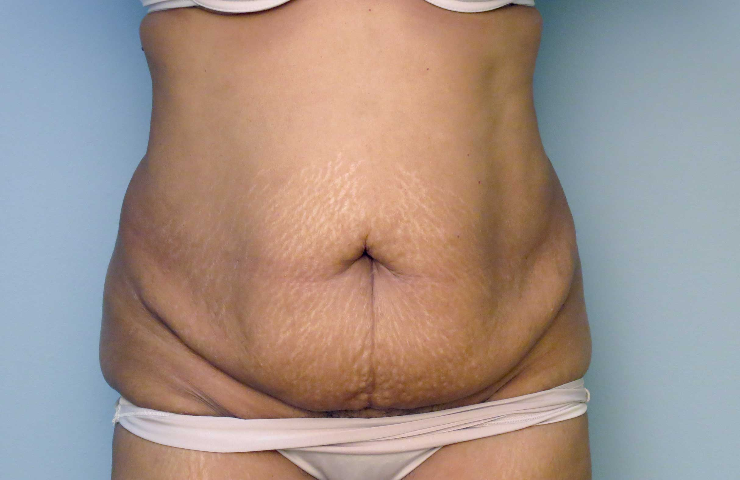 Gallery Body Prime Image YW Before