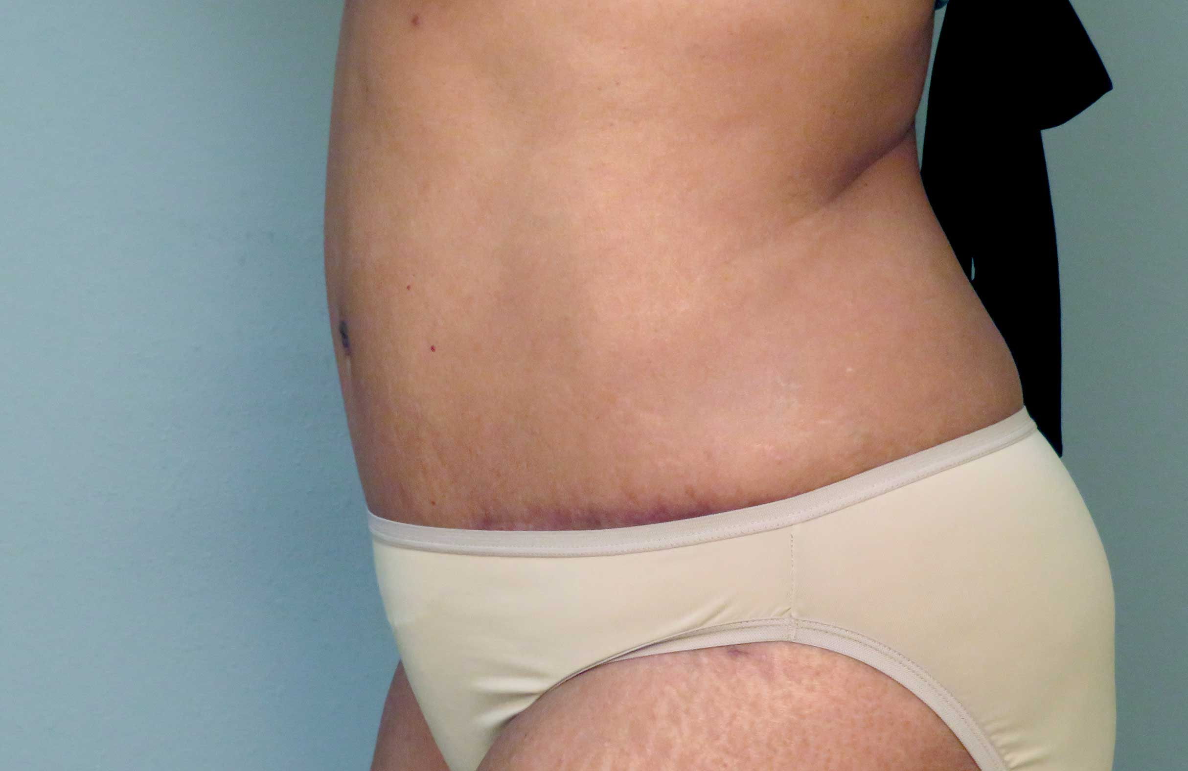 Gallery Body Prime Image YW after