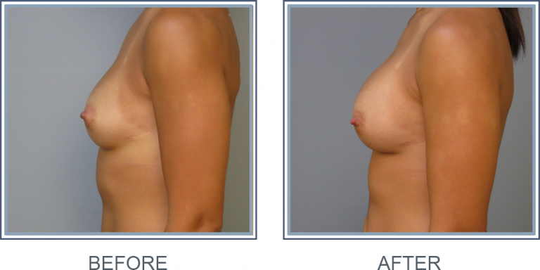 CG  Breast Implant