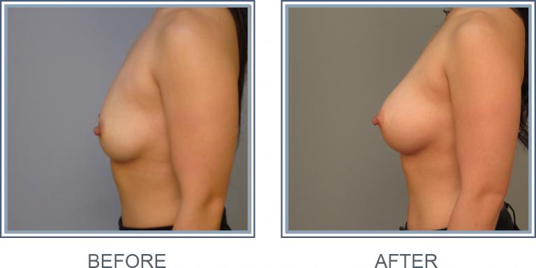 GW  Breast Implant
